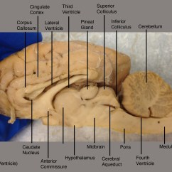 Lateral View Sheep Brain Diagram Vw Eos Parts Labeled Sagittal Pictures To Pin On