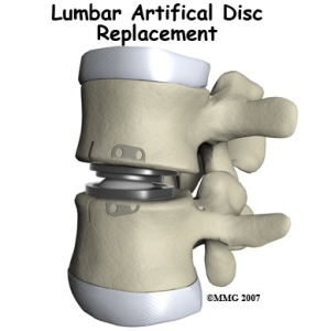 Lumbar Artifical Disc Replacement
