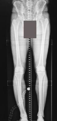 patient with old healed fracture of the right lower leg
