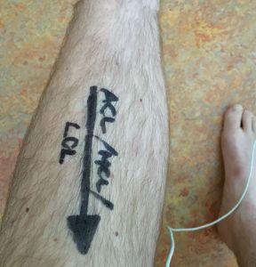 pre-op knee markings