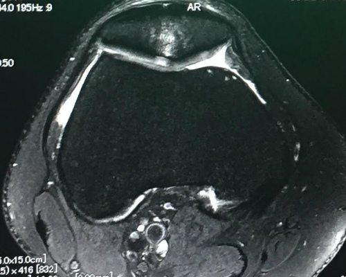 MRI scan with 3T