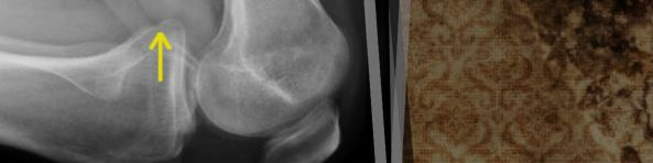 kneeling x-ray showing posterior translation of tibia