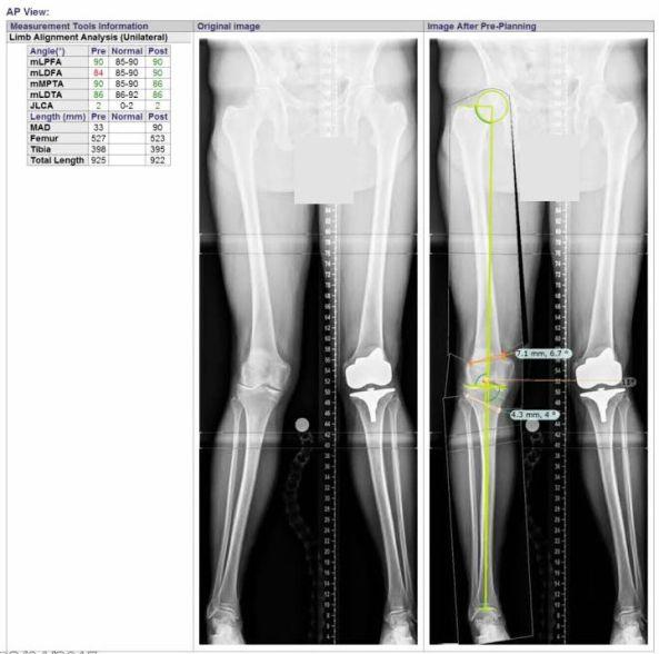 long leg planning X-rays