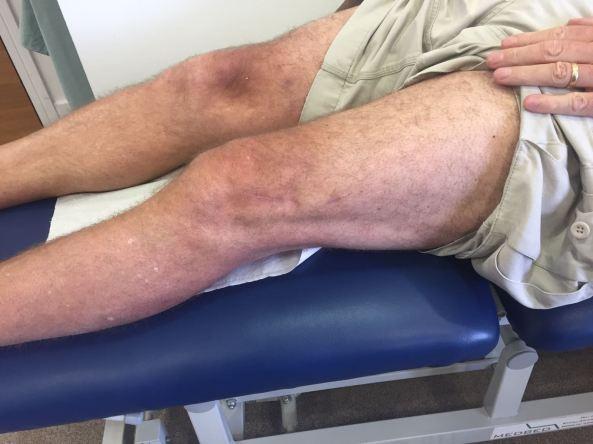 post osteotomy