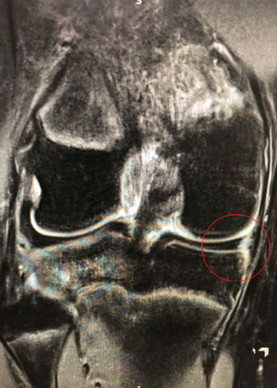 Ramp lesion of medial meniscus