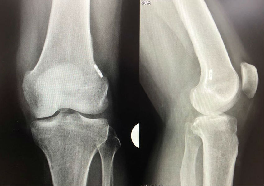 ACL repair X-ray