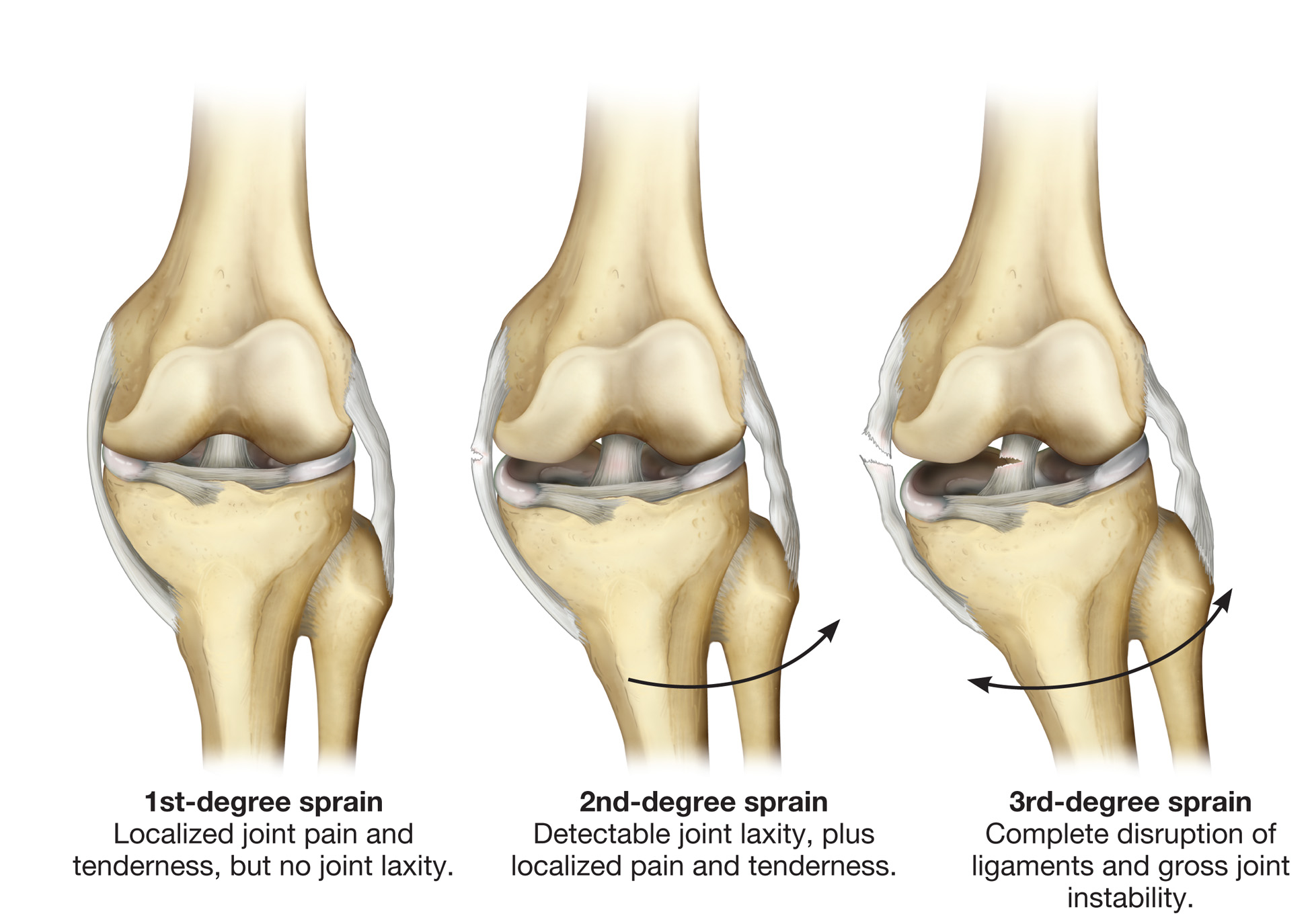 The most common knee injuries and disorders - kneesafe.com