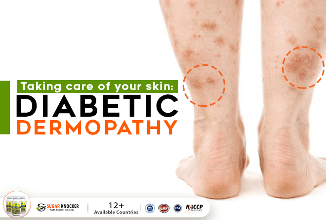 Diabetes Skin Problems Treatment Of Diabetic Dermopathy