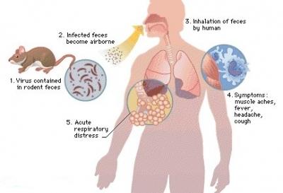Facts About Hantavirus Pulmonary Syndrome (HPS)