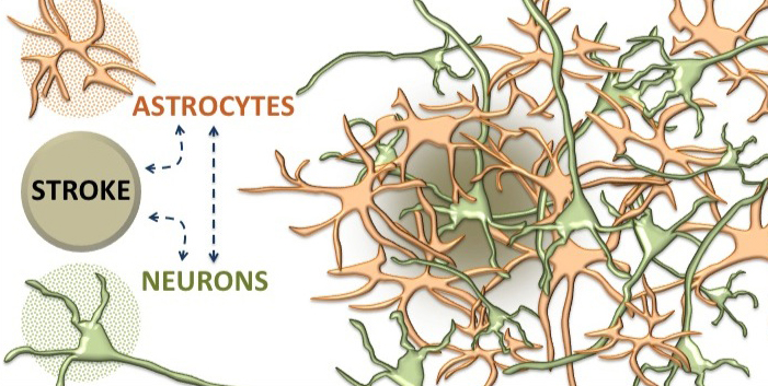 Stroke by Knowing Neurons