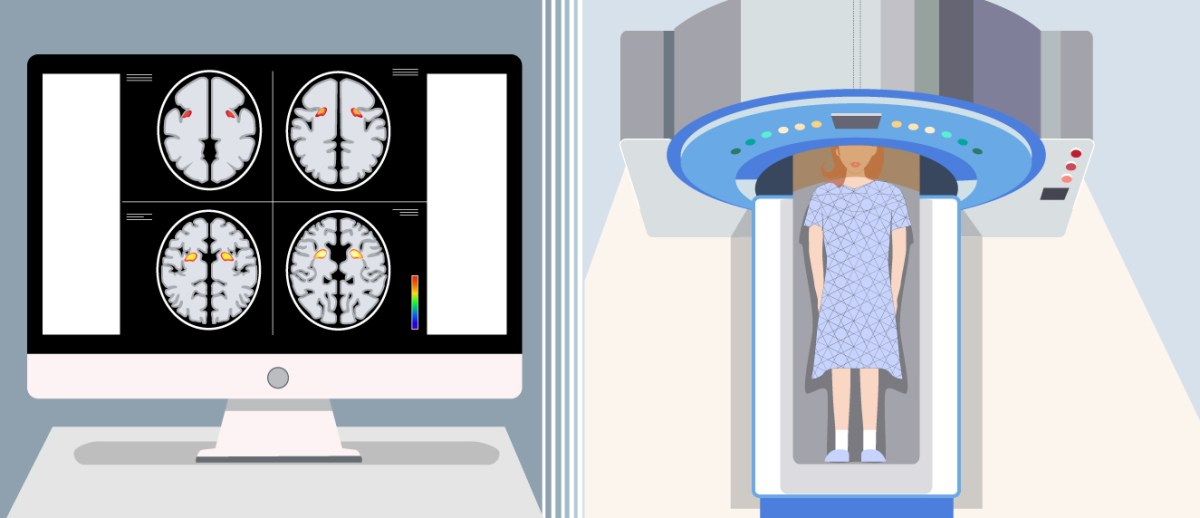 Can We Trust MRI Research? It's Complicated.