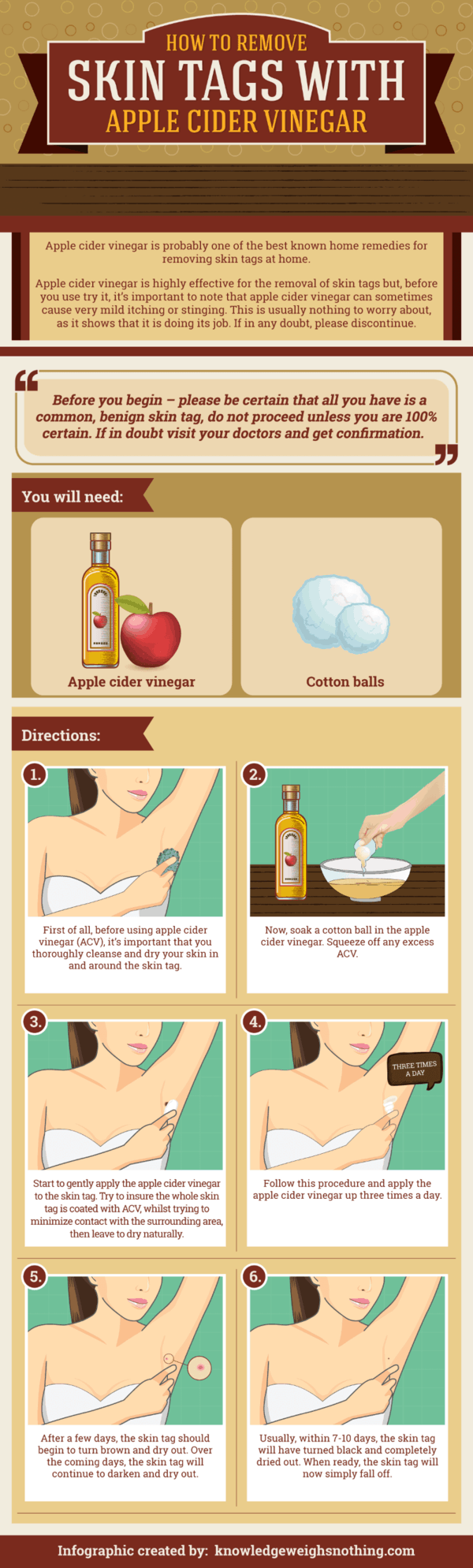 How to remove skin tags infographic