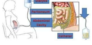 Simple Treatment to Kidney Failure