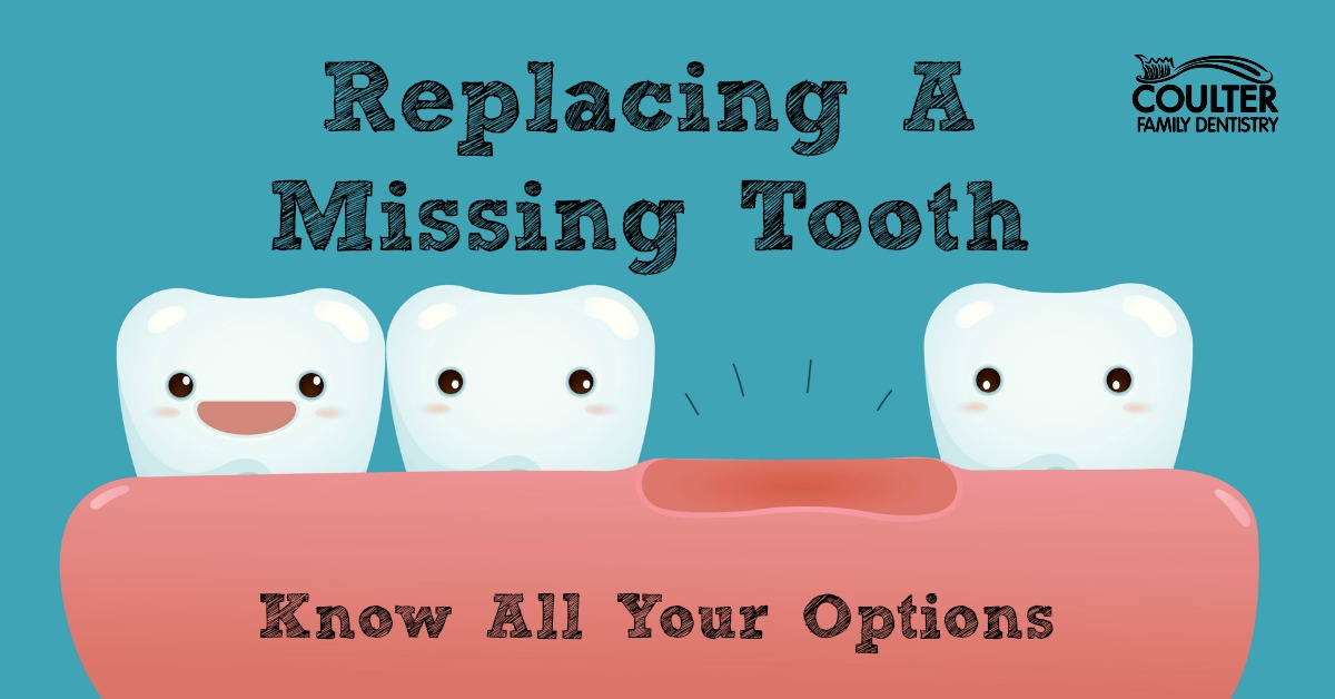 Replacing Missing Teeth Your Options  Knoxville Family