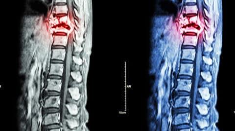 Injured spinal cord X-ray image