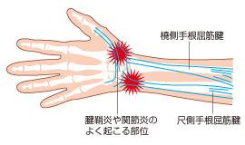ドゥケルバン腱鞘炎と奮闘中