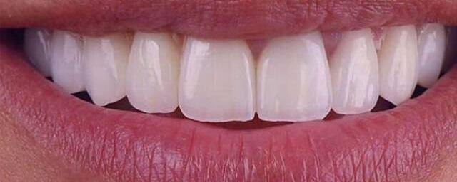 зубні вініри у Львові