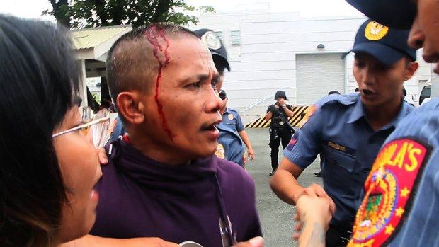 A protester bleeds after being clubbed by the police.