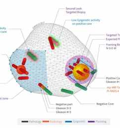 koelis 3d cartography of a prostate cancer [ 1024 x 773 Pixel ]