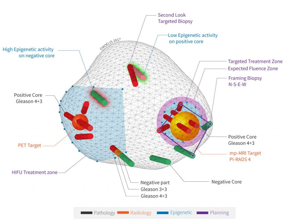 hight resolution of koelis 3d cartography of a prostate cancer