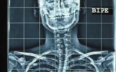 Escoliosis o deformidad lateral del raquis
