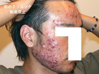 重症ニキビ治療前1