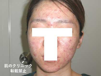 女性重症ニキビ3
