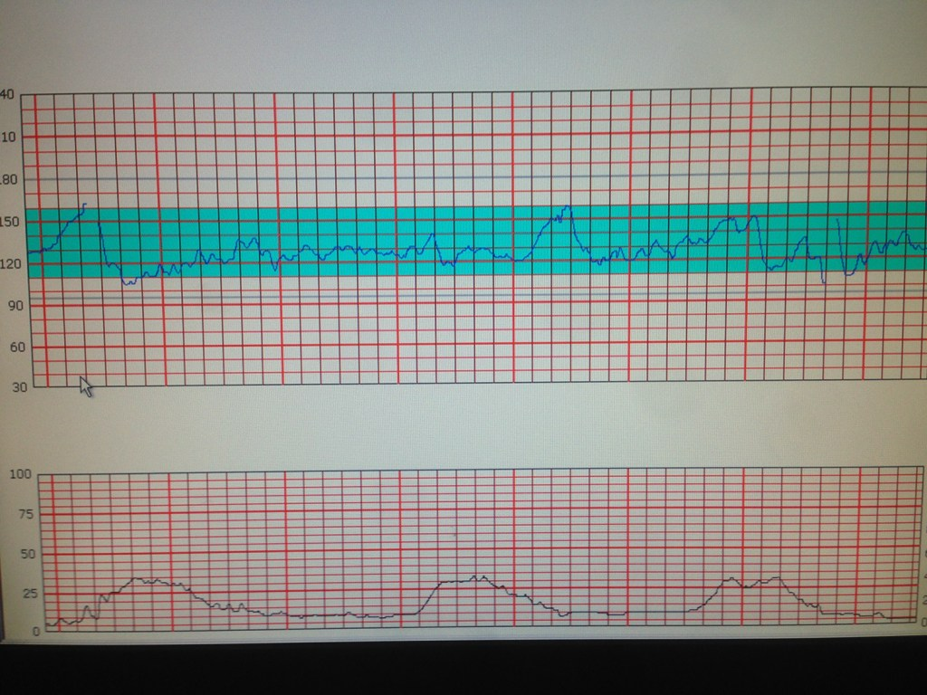 Contraction Monitor