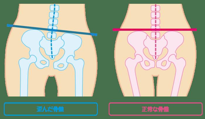 歪んだ骨盤と正常な骨盤【東京・新宿・小顔矯正・骨盤矯正】WAXPERIENCE