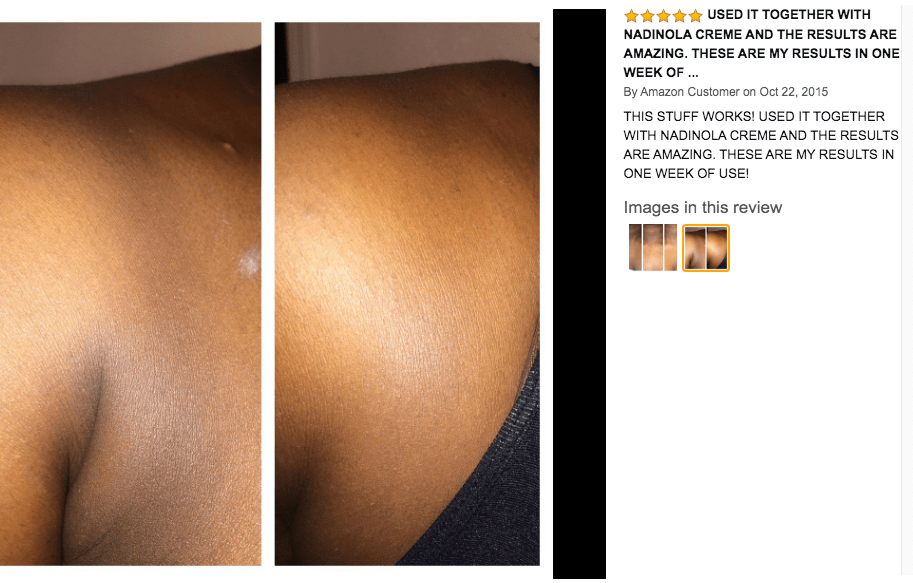 kojic acid soap before and after picture 3
