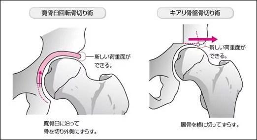 初期の臼蓋形成不全なら痛みや症状の改善は可能3