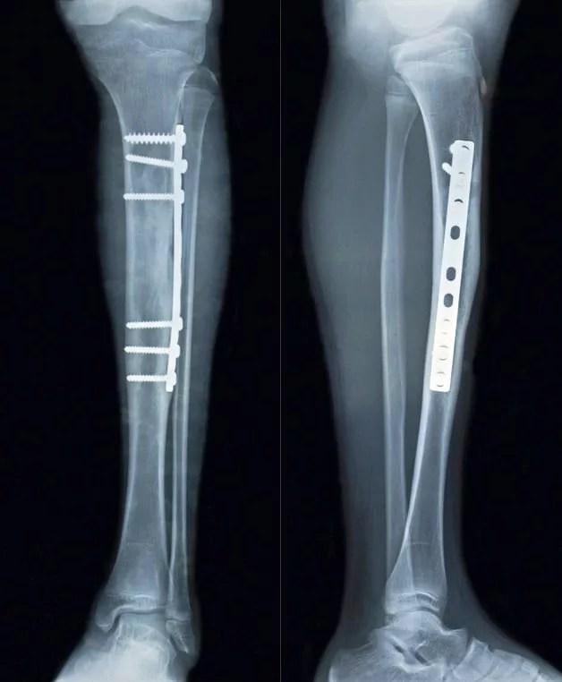 脛骨骨幹部骨折プレート固定