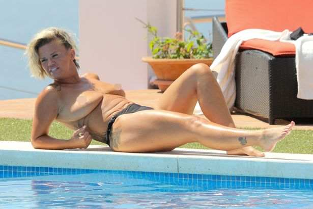 Still Need An Uplift! Former Singer Kerry Katona Sunbathes Topless On Holiday In Marbella 1