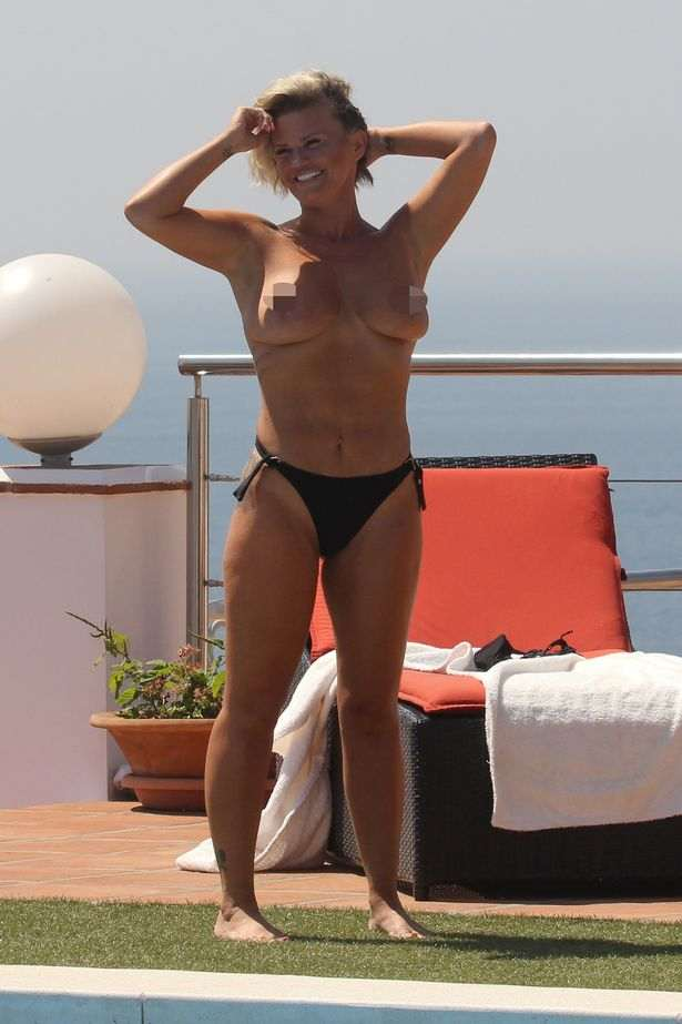 Still Need An Uplift! Former Singer Kerry Katona Sunbathes Topless On Holiday In Marbella 3