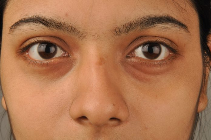 puffy eyes 1