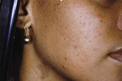 Beauty: 5 Simple But Highly Effective Ways To Get Rid Of Pimples 1