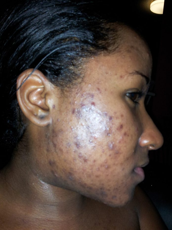 Beauty: 5 Simple But Highly Effective Ways To Get Rid Of Pimples 2