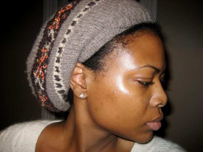Beauty Guide: 6 Home Remedies Of Getting Rid Of Dark Spots On The Face 1