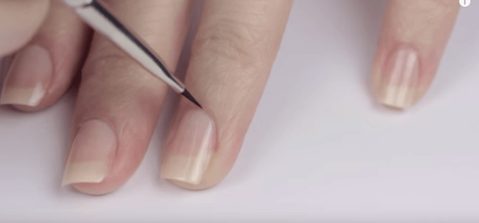 Beauty Guide: 5 Reasons For Having Frail And Dry Nails 4