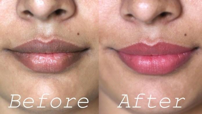 Beauty DIY: Three Effective Ways To Get Rid Of Dark Lips 3