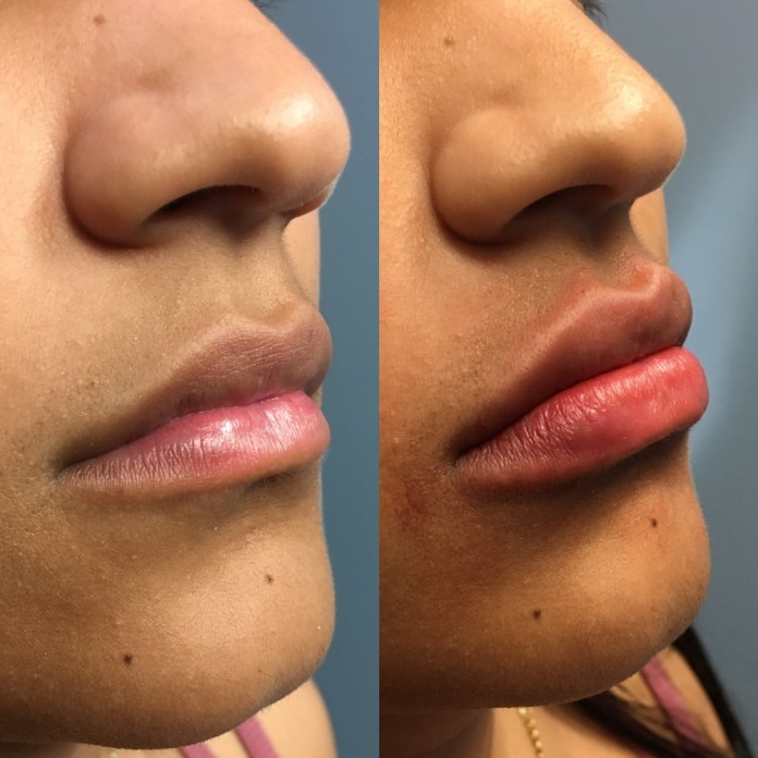Beauty DIY: Three Effective Ways To Get Rid Of Dark Lips 2