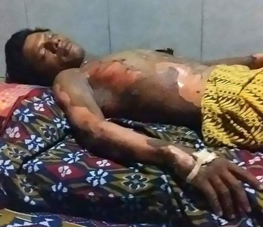 Woman Sets Husband On Fire For Refusing To Give Her His Phone's Passcode 1