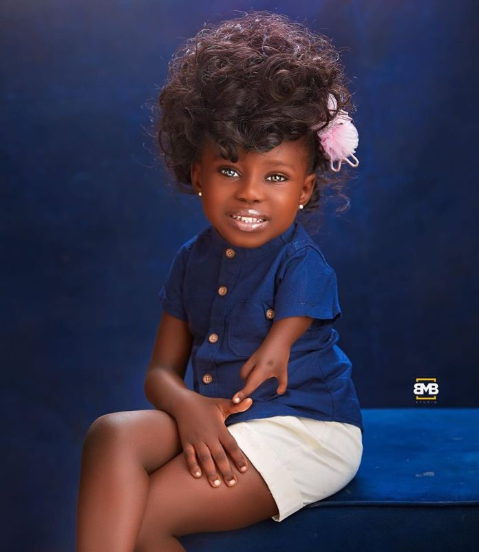 Meet Tiaraoluwa Ogundipe, The 4-Year-Old With Unique ForeLimbs