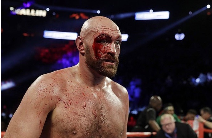 Tyson Fury Had 47 Stitches After Otto Wallin's Fight...Declares He's Ready For War With Deontay Wilder 2