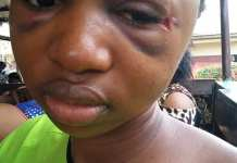 Favour Grey, The Lady Who Survived Living With Bullet In The Head For 5 Days Before Discovery