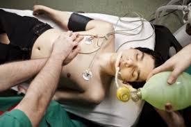 Амфетамин: что такое, воздействие на организм, передозировка и лечение зависимости
