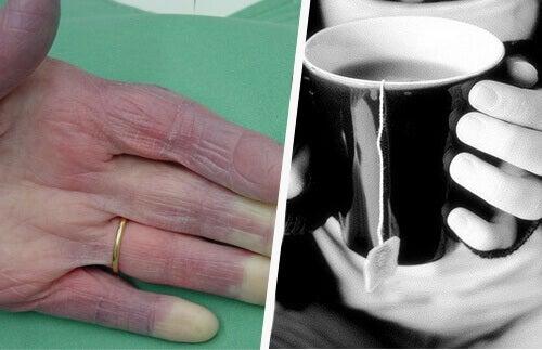 Зверніть увагу: якщо у вас постійно холодні руки та ноги — це може бути ознакою поганого кровообігу