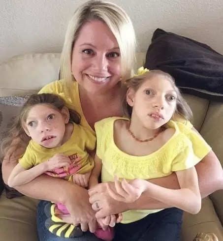 مرض نادر بسبب اهمال الام