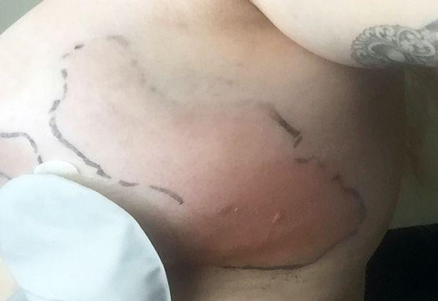 pay-dennie-lees-breast-implants_1015