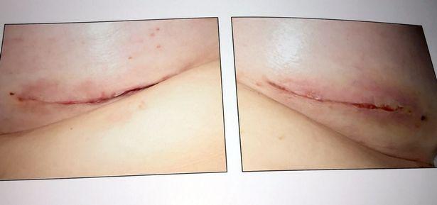 pay-dennie-lees-breast-implants_1016